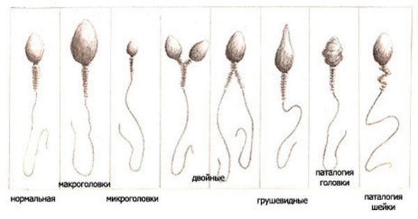 Дефекты головки сперма