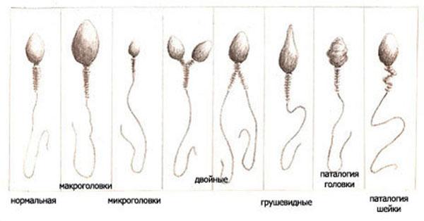 Сперма На Морфологию